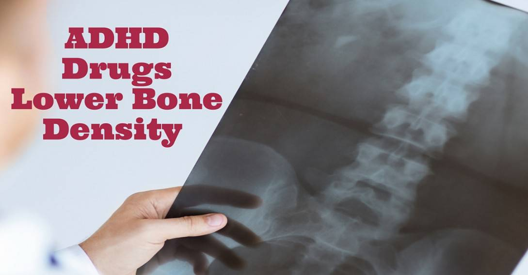 adhd drugs lower bone density in kids